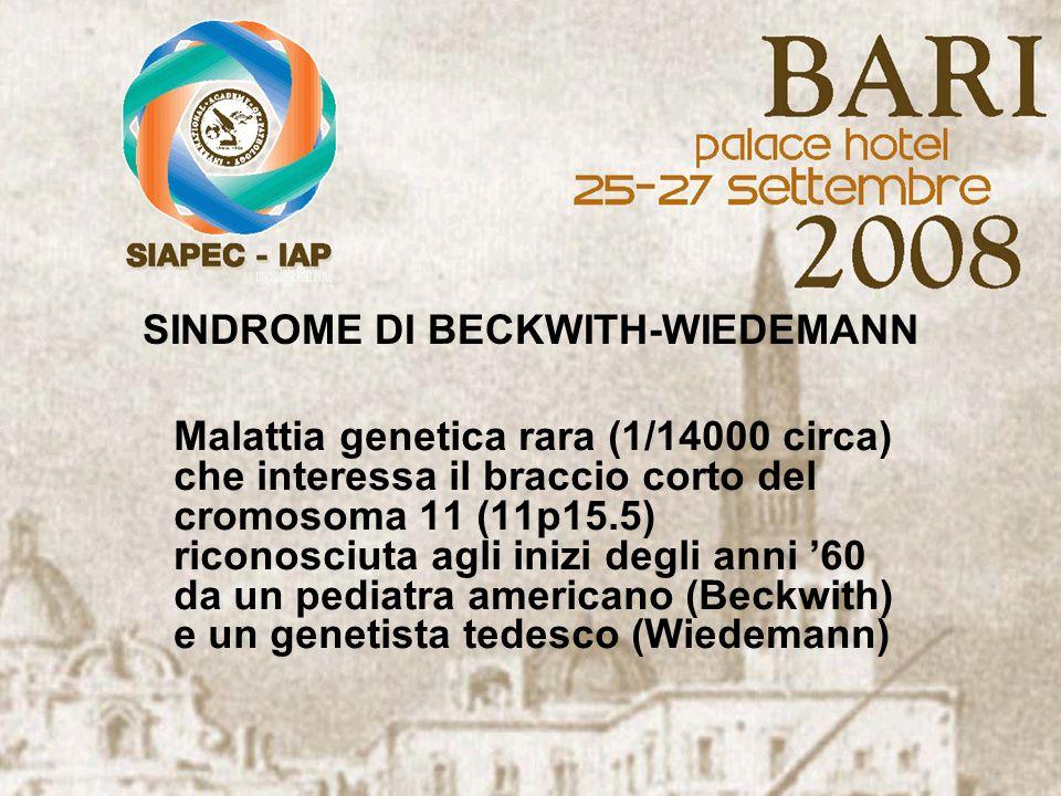 SINDROME DI BECKWITH-WIEDEMANN Malattia genetica rara (1/14000 circa) che interessa il braccio corto del cromosoma 11 (11p15.5) riconosciuta agli iniz