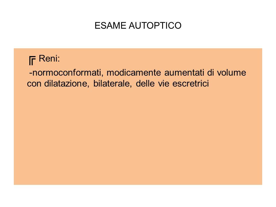 ESAME AUTOPTICO Reni: -normoconformati, modicamente aumentati di volume con dilatazione, bilaterale, delle vie escretrici
