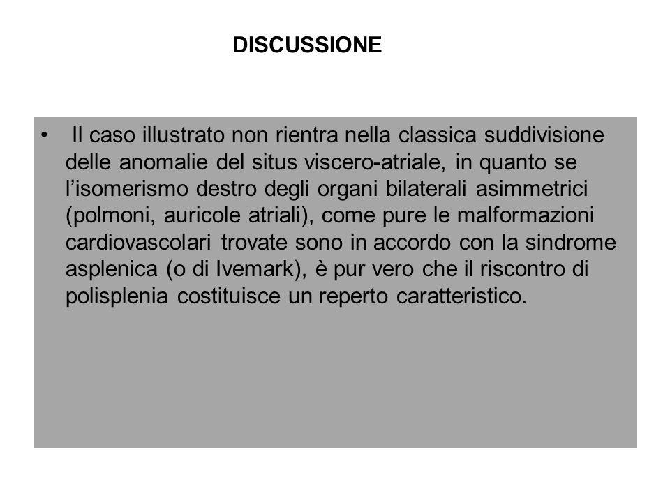 DISCUSSIONE Il caso illustrato non rientra nella classica suddivisione delle anomalie del situs viscero-atriale, in quanto se lisomerismo destro degli