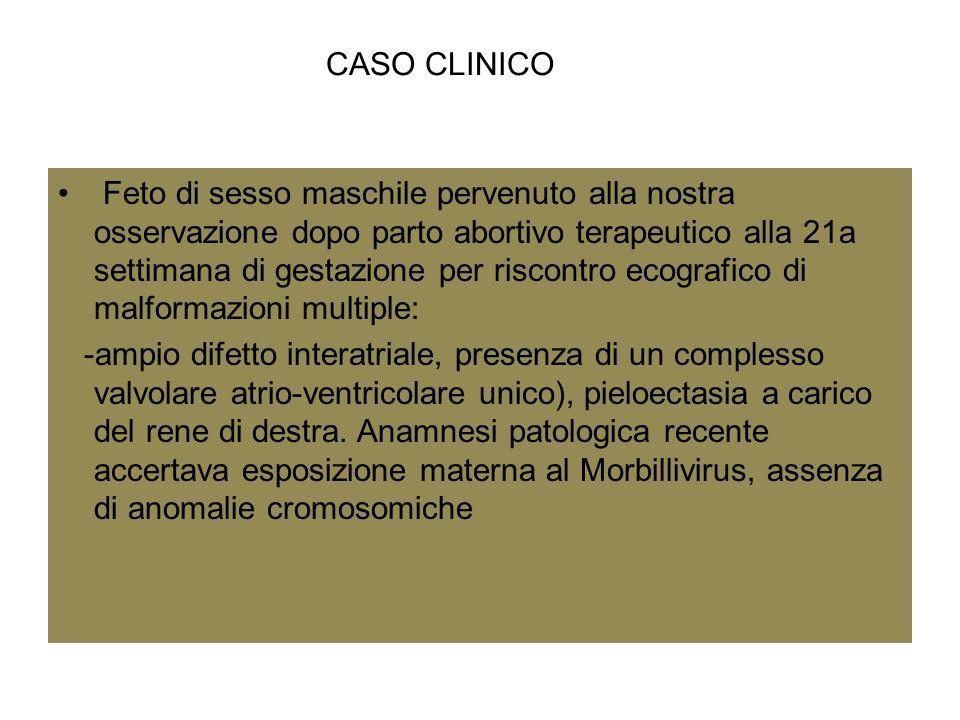 CASO CLINICO Feto di sesso maschile pervenuto alla nostra osservazione dopo parto abortivo terapeutico alla 21a settimana di gestazione per riscontro