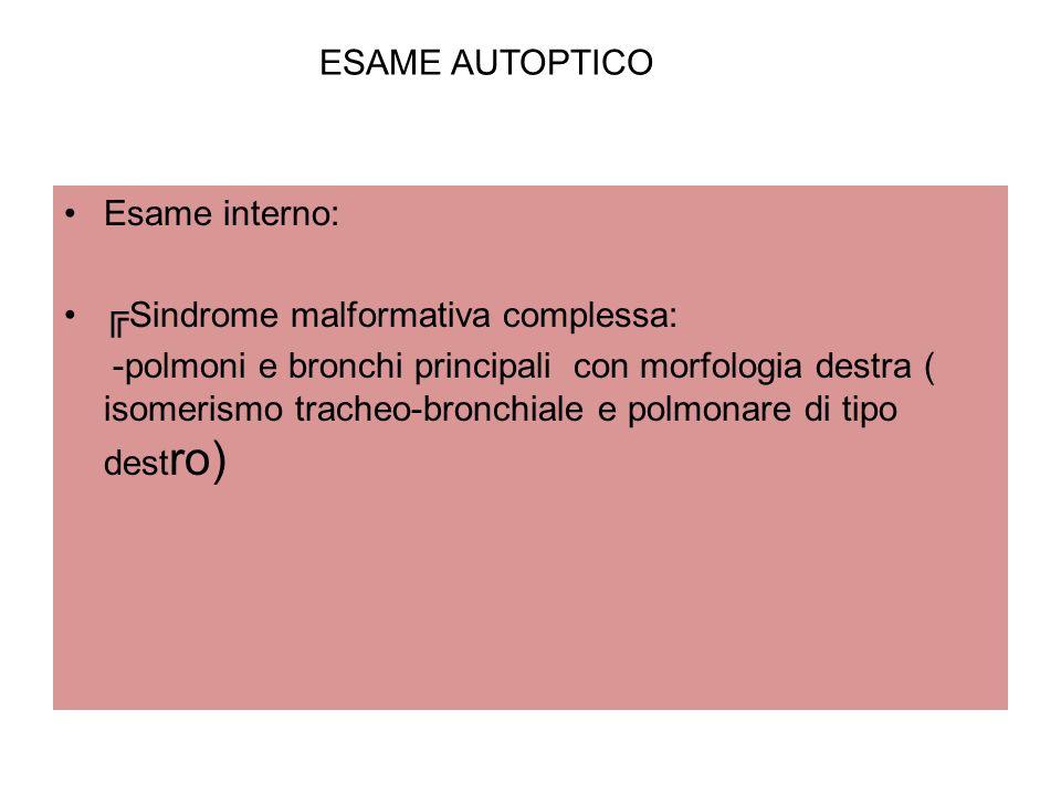 ESAME AUTOPTICO Esame interno: Sindrome malformativa complessa: -polmoni e bronchi principali con morfologia destra ( isomerismo tracheo-bronchiale e