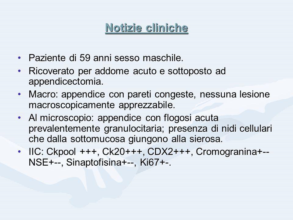 Notizie cliniche Paziente di 59 anni sesso maschile.Paziente di 59 anni sesso maschile. Ricoverato per addome acuto e sottoposto ad appendicectomia.Ri