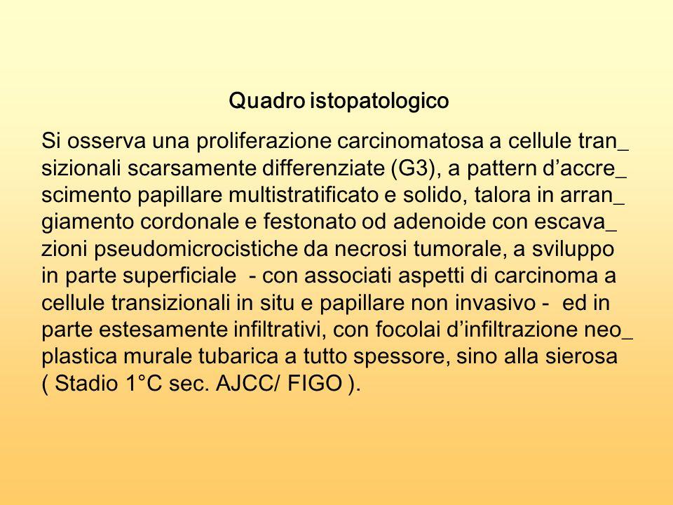 Quadro istopatologico Si osserva una proliferazione carcinomatosa a cellule tran_ sizionali scarsamente differenziate (G3), a pattern daccre_ scimento