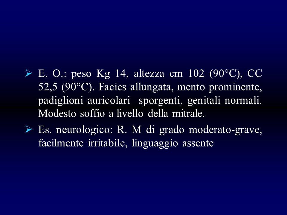 E. O.: peso Kg 14, altezza cm 102 (90°C), CC 52,5 (90°C). Facies allungata, mento prominente, padiglioni auricolari sporgenti, genitali normali. Modes