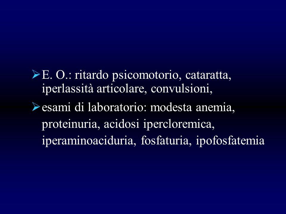 E. O.: ritardo psicomotorio, cataratta, iperlassità articolare, convulsioni, esami di laboratorio: modesta anemia, proteinuria, acidosi ipercloremica,