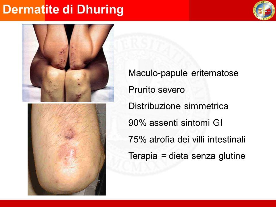 Maculo-papule eritematose Prurito severo Distribuzione simmetrica 90% assenti sintomi GI 75% atrofia dei villi intestinali Terapia = dieta senza glutine Dermatite di Dhuring