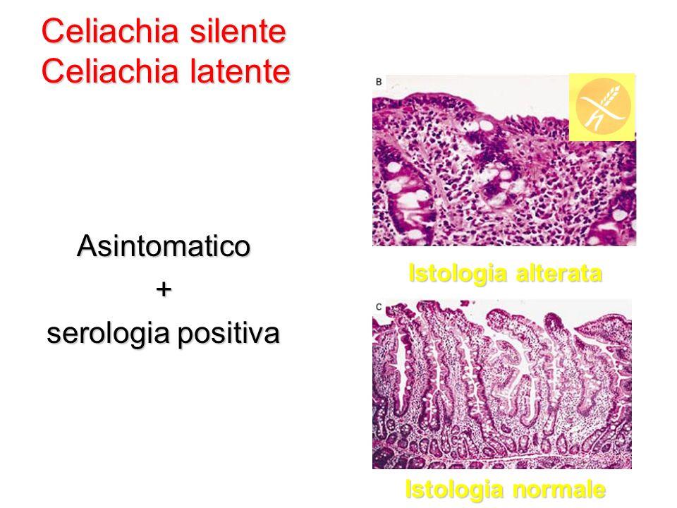 Asintomatico+ serologia positiva Celiachia silente Celiachia latente Celiachia silente Celiachia latente Istologia normale Istologia alterata