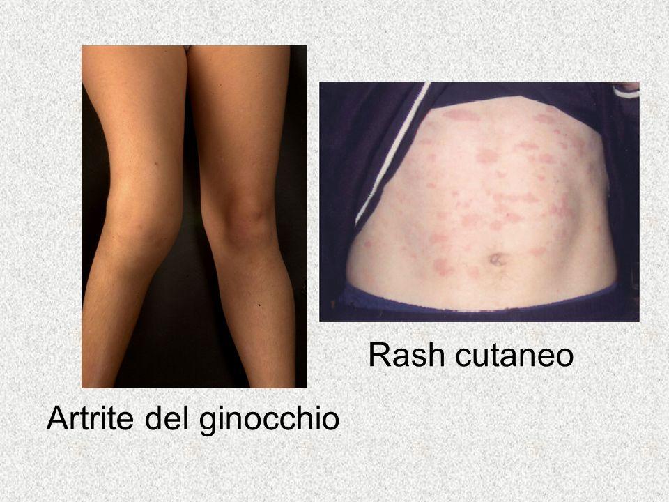 Artrite del ginocchio Rash cutaneo
