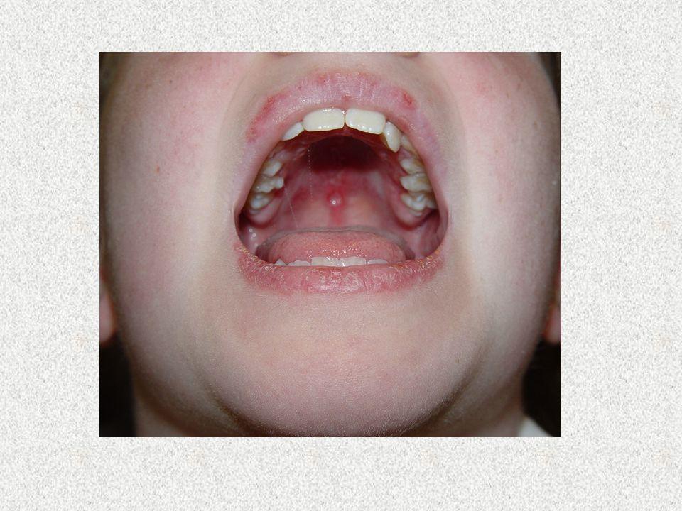 Criteri per la classificazione del LES Rash malare Rash discoide Fotosensibilità Ulcere orali Artrite (non erosiva, di 2 o più articolazioni) Sierosit