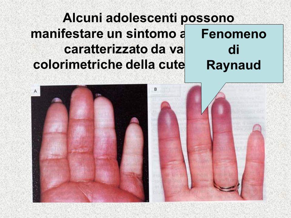 Alcuni adolescenti possono manifestare un sintomo alle estremità, caratterizzato da variazione colorimetriche della cute e parestesie Fenomeno di Raynaud