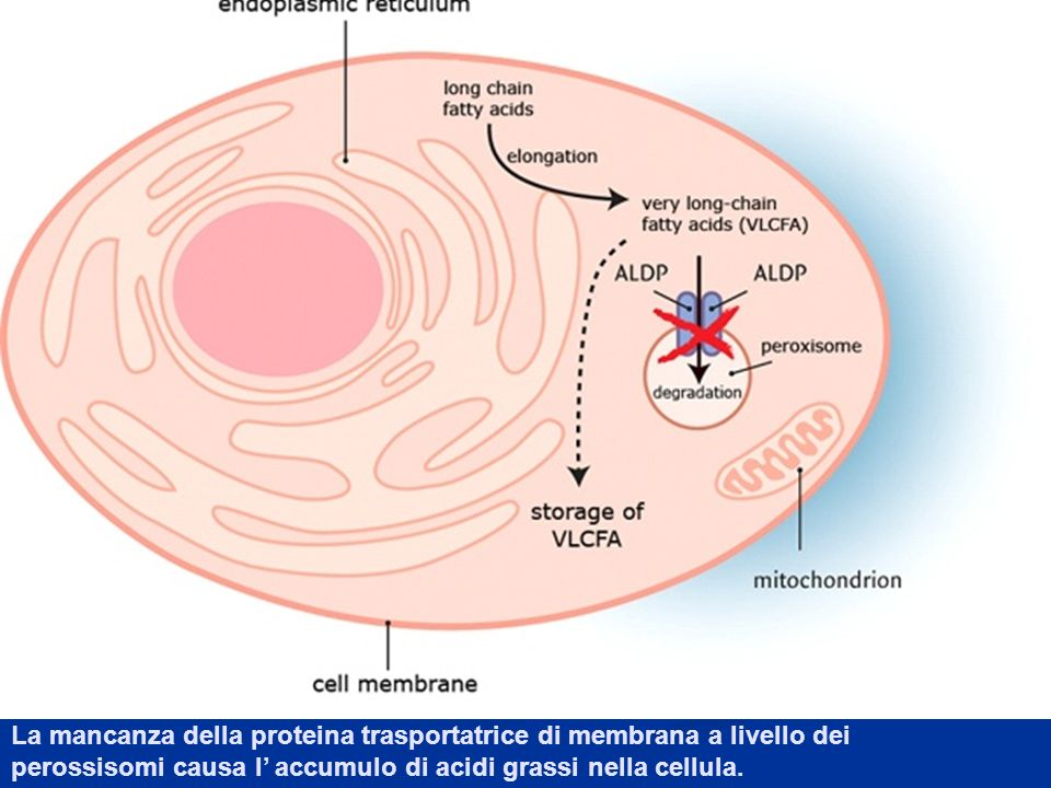 La mancanza della proteina trasportatrice di membrana a livello dei perossisomi causa l accumulo di acidi grassi nella cellula.