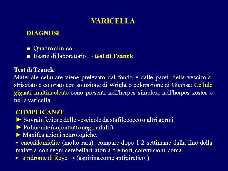 VARICELLA DIAGNOSI Quadro clinico Esami di laboratorio test di Tzanck Test di Tzanck Materiale cellulare viene prelevato dal fondo e dalle pareti dell
