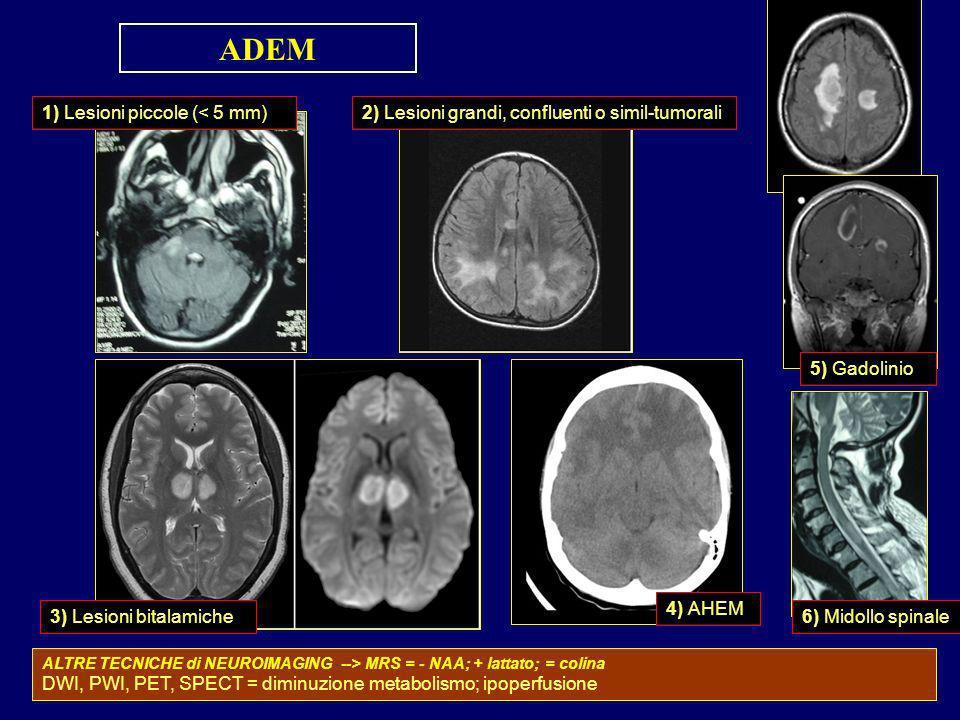 ADEM 1) Lesioni piccole (< 5 mm)2) Lesioni grandi, confluenti o simil-tumorali 3) Lesioni bitalamiche 4) AHEM 5) Gadolinio 6) Midollo spinale ALTRE TE