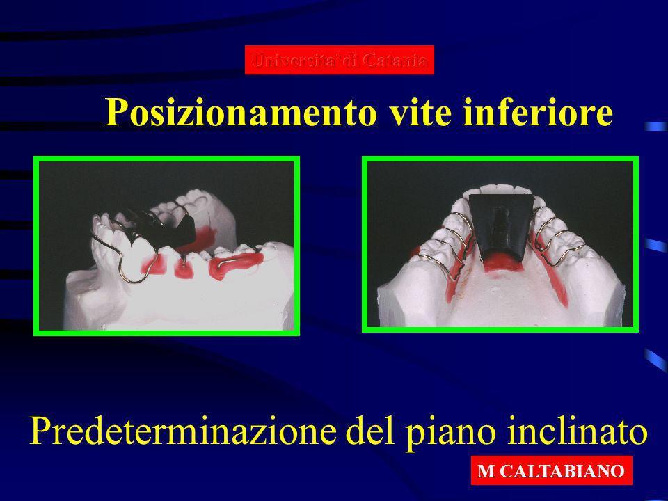 Posizionamento vite inferiore Predeterminazione del piano inclinato M CALTABIANO