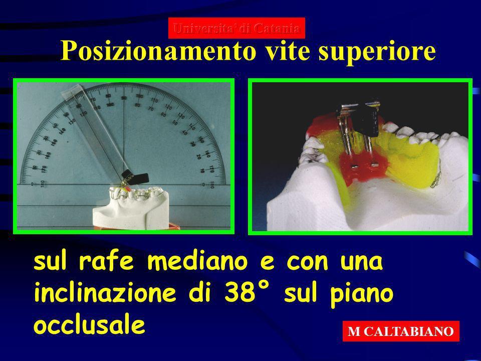 Posizionamento vite superiore sul rafe mediano e con una inclinazione di 38° sul piano occlusale M CALTABIANO