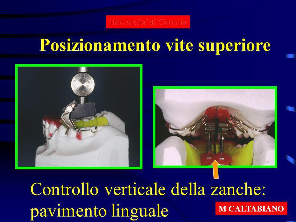 Posizionamento vite superiore Controllo verticale della zanche: pavimento linguale M CALTABIANO