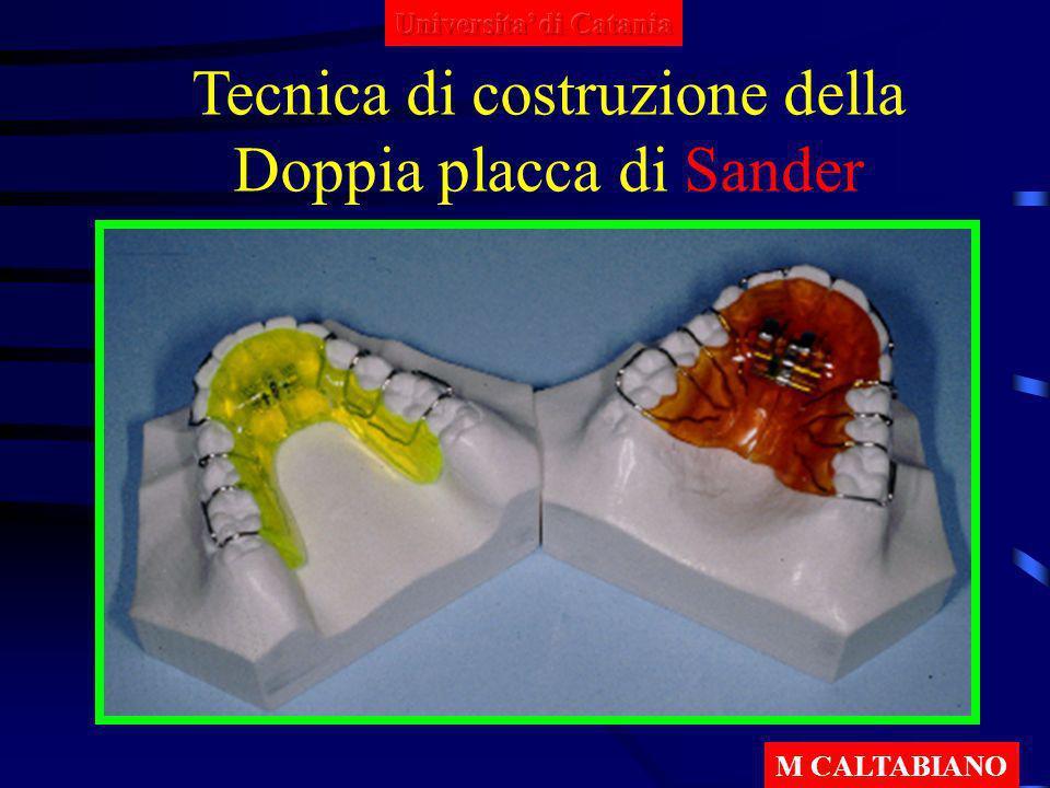 Tecnica di costruzione della Doppia placca di Sander M CALTABIANO