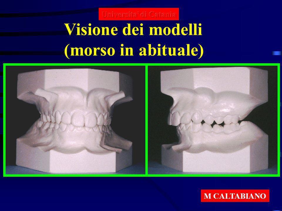 Morso di costruzione in ipercorrezione con incisivi in testa Dimensione verticale 4 mm Protrusiva 5 - 7 mm M CALTABIANO