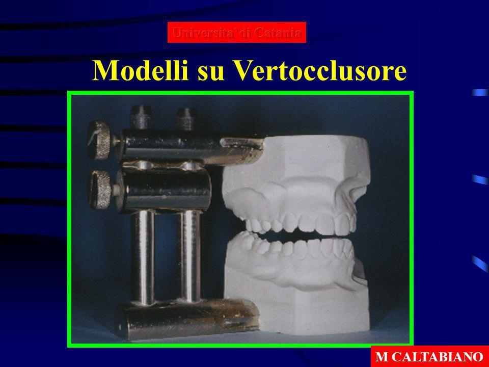 Modelli su Vertocclusore M CALTABIANO