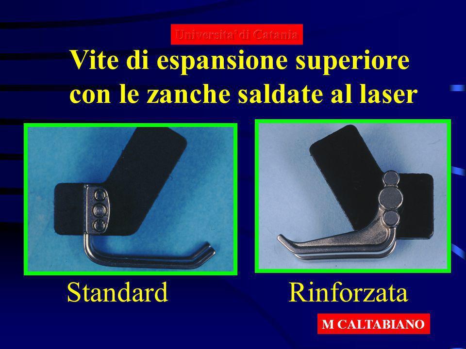 Vite di espansione superiore con le zanche saldate al laser Standard Rinforzata M CALTABIANO