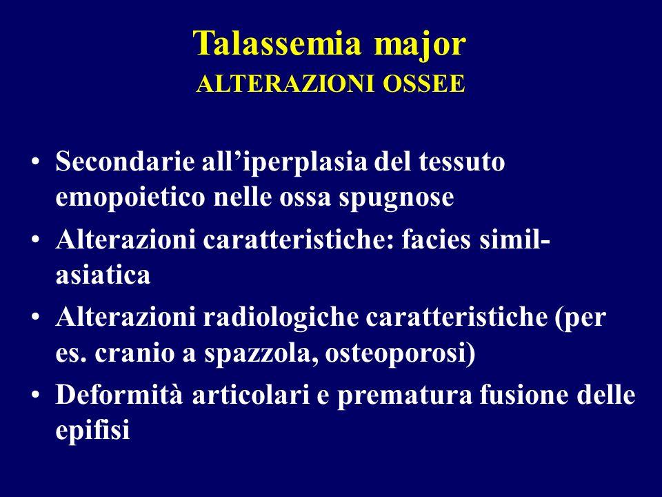 ALTERAZIONI OSSEE Secondarie alliperplasia del tessuto emopoietico nelle ossa spugnose Alterazioni caratteristiche: facies simil- asiatica Alterazioni