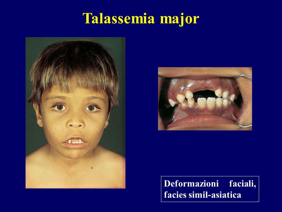 Deformazioni faciali, facies simil-asiatica Talassemia major