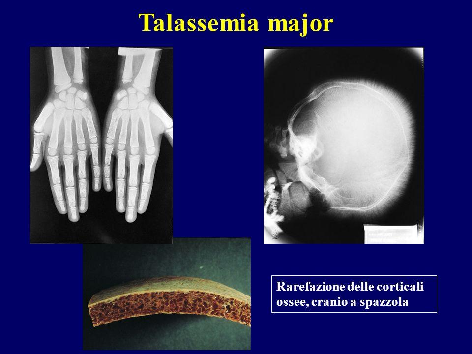 Rarefazione delle corticali ossee, cranio a spazzola Talassemia major