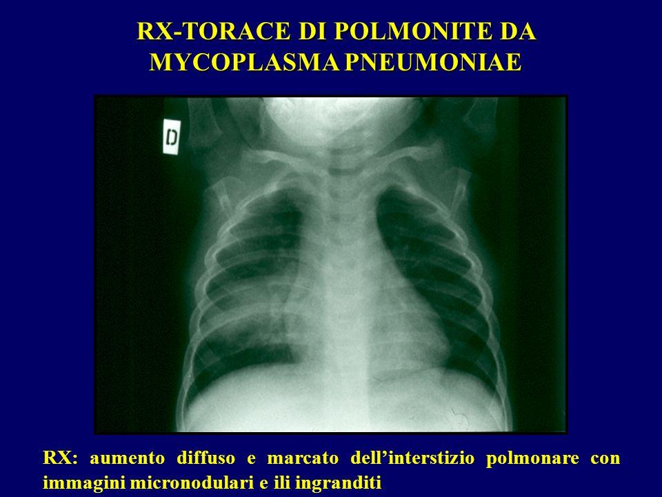 RX-TORACE DI POLMONITE DA MYCOPLASMA PNEUMONIAE RX: aumento diffuso e marcato dellinterstizio polmonare con immagini micronodulari e ili ingranditi