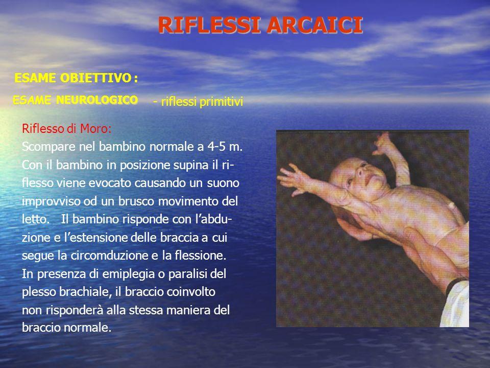 ESAME NEUROLOGICO Riflesso di Moro: Scompare nel bambino normale a 4-5 m. Con il bambino in posizione supina il ri- flesso viene evocato causando un s