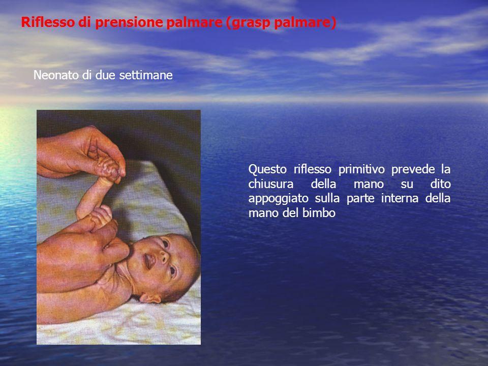 Riflesso di prensione palmare (grasp palmare) Neonato di due settimane Questo riflesso primitivo prevede la chiusura della mano su dito appoggiato sul