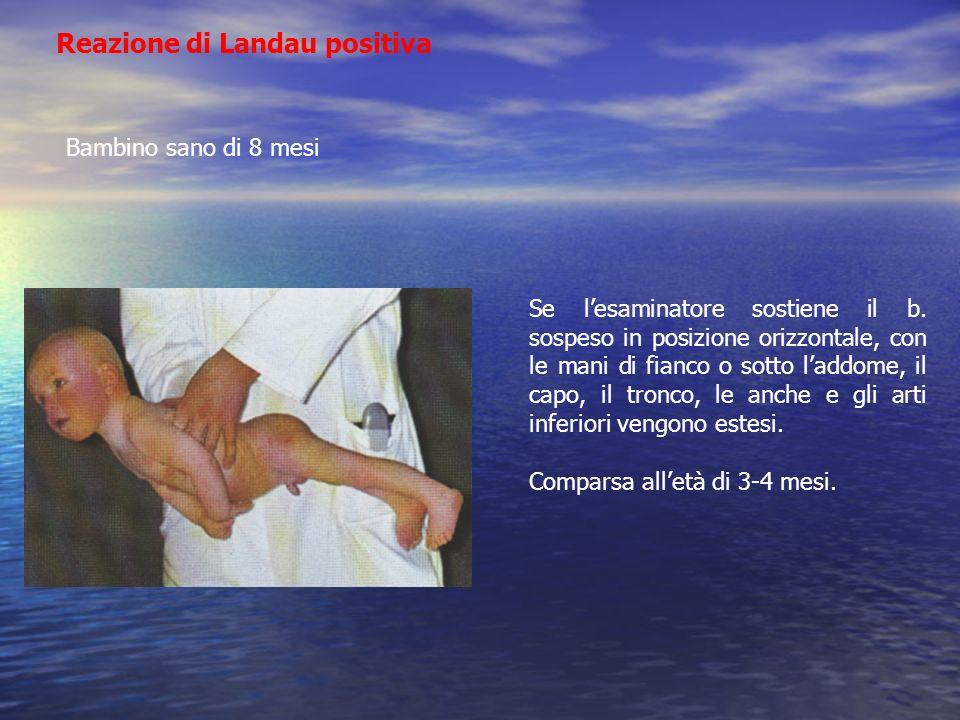 Reazione di Landau positiva Bambino sano di 8 mesi Se lesaminatore sostiene il b. sospeso in posizione orizzontale, con le mani di fianco o sotto ladd