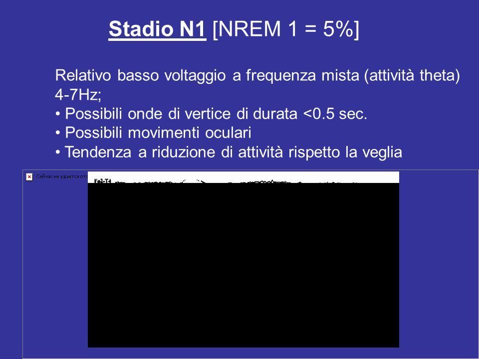 Stadio N1 [NREM 1 = 5%] Relativo basso voltaggio a frequenza mista (attività theta) 4-7Hz; Possibili onde di vertice di durata <0.5 sec. Possibili mov