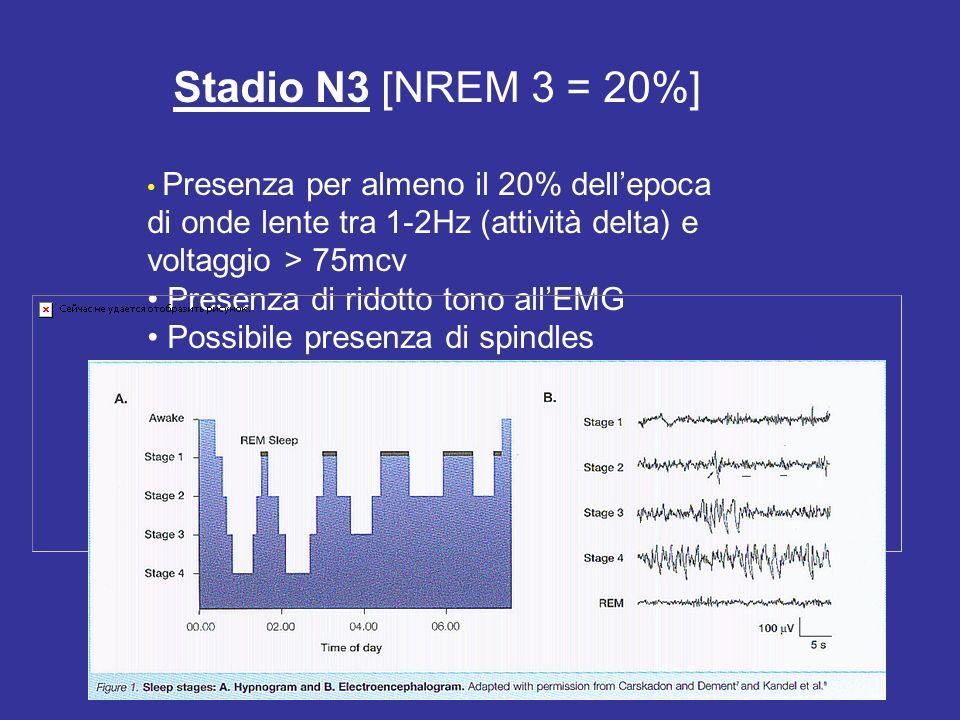 Stadio N3 [NREM 3 = 20%] Presenza per almeno il 20% dellepoca di onde lente tra 1-2Hz (attività delta) e voltaggio > 75mcv Presenza di ridotto tono al