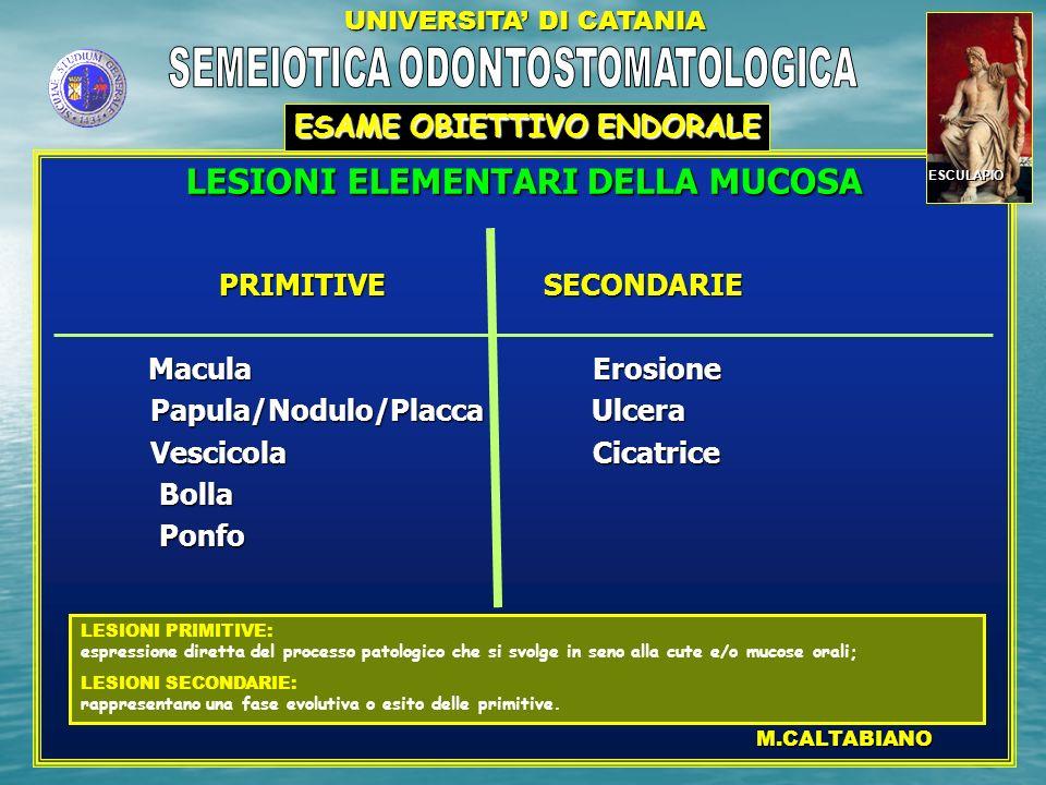 LESIONI ELEMENTARI DELLA MUCOSA PRIMITIVE SECONDARIE PRIMITIVE SECONDARIE Macula Erosione Macula Erosione Papula/Nodulo/Placca Ulcera Papula/Nodulo/Pl
