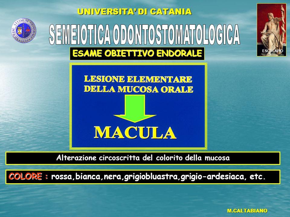 UNIVERSITA DI CATANIA M.CALTABIANO Alterazione della mucosa caratterizzata da un rilievo solido, circoscritto, di forma variabile, di piccole dimensioni,intraepiteliale (Ispessimento epiteliale) e/o sottoepiteliale (Infiltrato infiammatorio).