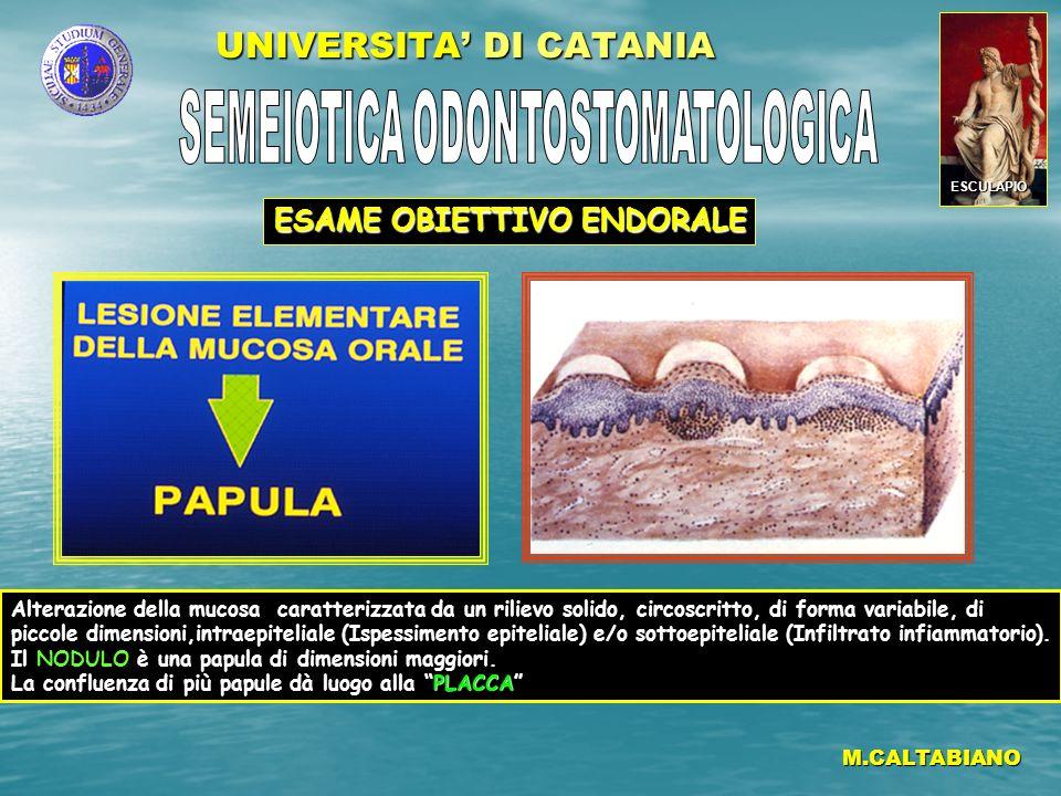 UNIVERSITA DI CATANIA M.CALTABIANO Raccolta di liquido intraepiteliale (o sottoepiteliale, immediatamente al di sotto dellepitelio), circoscritta, di piccole dimensioni.