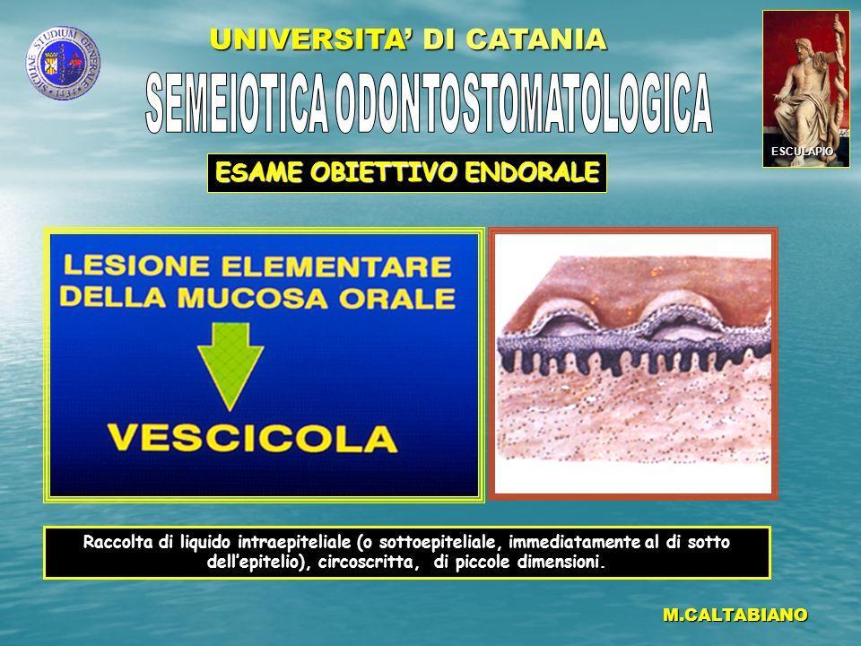 UNIVERSITA DI CATANIA M.CALTABIANO Raccolta di liquido intraepiteliale (o sottoepiteliale, immediatamente al di sotto dellepitelio), circoscritta, di