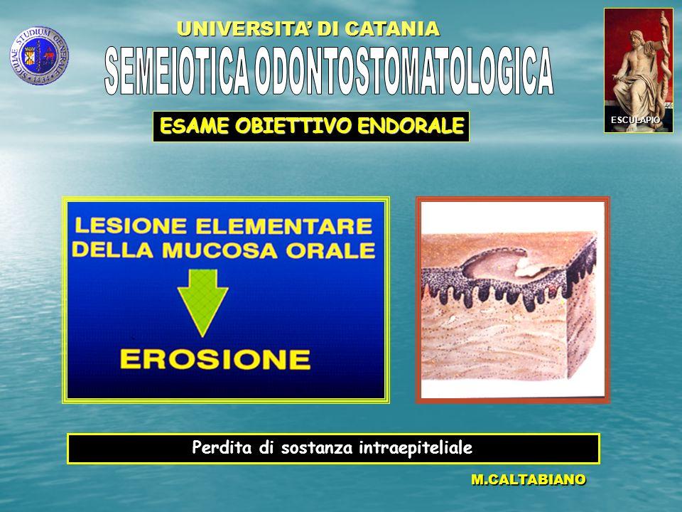 UNIVERSITA DI CATANIA M.CALTABIANO Perdita di sostanza intra e sottoepiteliale ESAME OBIETTIVO ENDORALE ESCULAPIO
