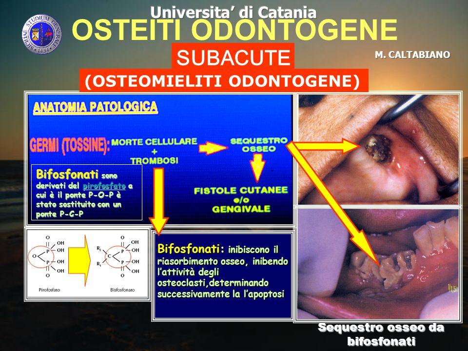 OSTEITI ODONTOGENE SUBACUTE (OSTEOMIELITI ODONTOGENE) Sequestro osseo da bifosfonati Bifosfonati: inibiscono il riasorbimento osseo, inibendo lattivit