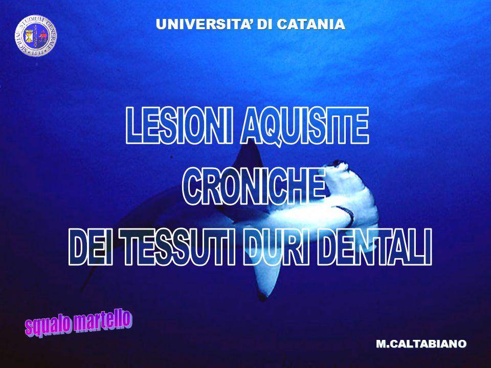 LESIONI AQUISITE CRONICHE DEI TESSUTI DURI DENTALI UNIVERSITA DI CATANIA M.CALTABIANO CARIE