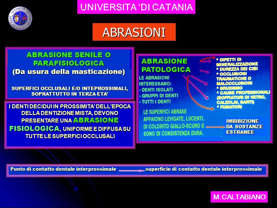 UNIVERSITA DI CATANIA M.CALTABIANO CASI CLINICI ABRASIONI FACCETTE DUSURA