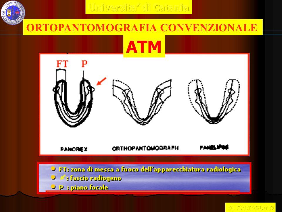 ORTOPANTOMOGRAFIA CONVENZIONALE ATM
