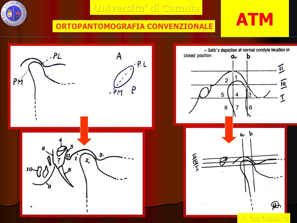Risulta,pertanto, difficile valutare la morfologia e i rapporti dei due capi articolari Risulta,pertanto, difficile valutare la morfologia e i rapporti dei due capi articolari ORTOPANTOMOGRAFIA CONVENZIONALE ATM