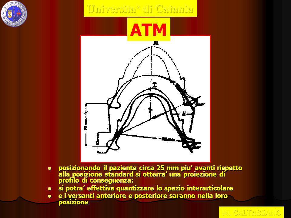 ORTOPANTOMOGRAFIA SPIRALE ATM