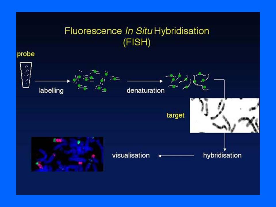 Quantitative Fluorescent PCR Trisomy detection in prenatal samples Ratio: 1 : 1 : 1 Hypervariable region on chromosome 21 amplified by F- PCR Ratio: 1 : 2