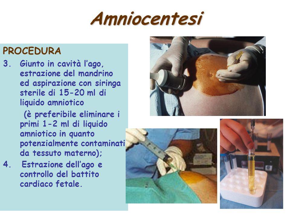 Amniocentesi PROCEDURA 3.Giunto in cavità lago, estrazione del mandrino ed aspirazione con siringa sterile di 15-20 ml di liquido amniotico (è preferi