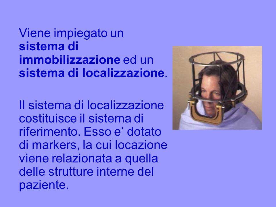 Viene impiegato un sistema di immobilizzazione ed un sistema di localizzazione. Il sistema di localizzazione costituisce il sistema di riferimento. Es