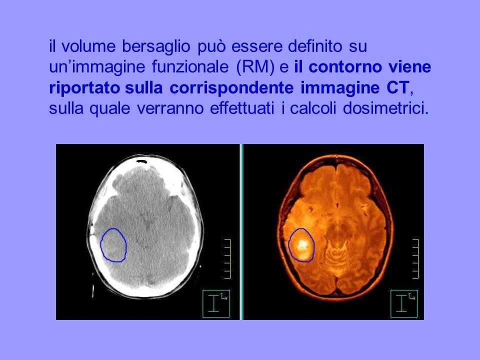 il volume bersaglio può essere definito su unimmagine funzionale (RM) e il contorno viene riportato sulla corrispondente immagine CT, sulla quale verr