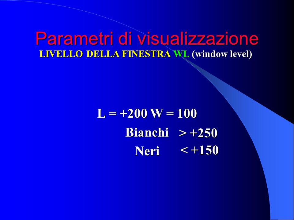 Parametri di visualizzazione L = +200 W = 100 BianchiNeri LIVELLO DELLA FINESTRA WL (window level) > +250 < +150
