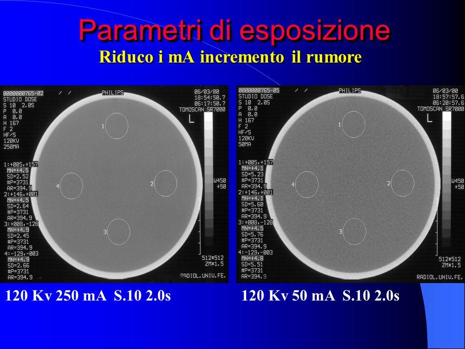 Parametri di esposizione 120 Kv 250 mA S.10 2.0s120 Kv 50 mA S.10 2.0s Riduco i mA incremento il rumore